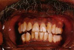 Effects of kissing someone who chews tobacco