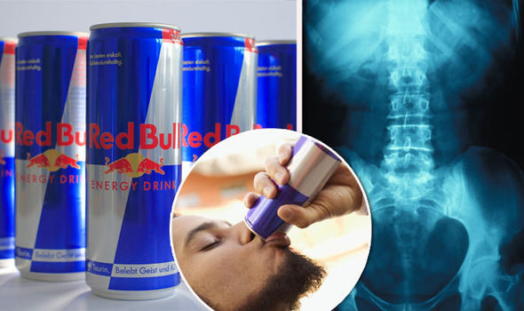 Can red bull make you fail a drug test