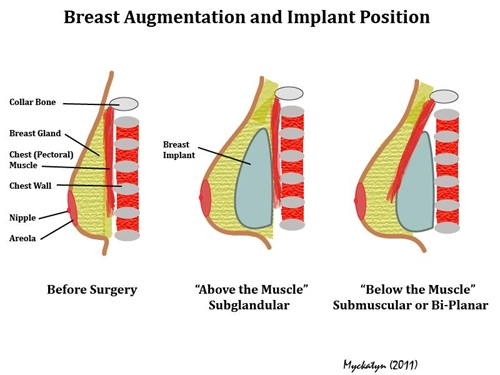 Breast augmentation and breastfeeding facts